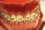 fot. aparat ortodontyczny
